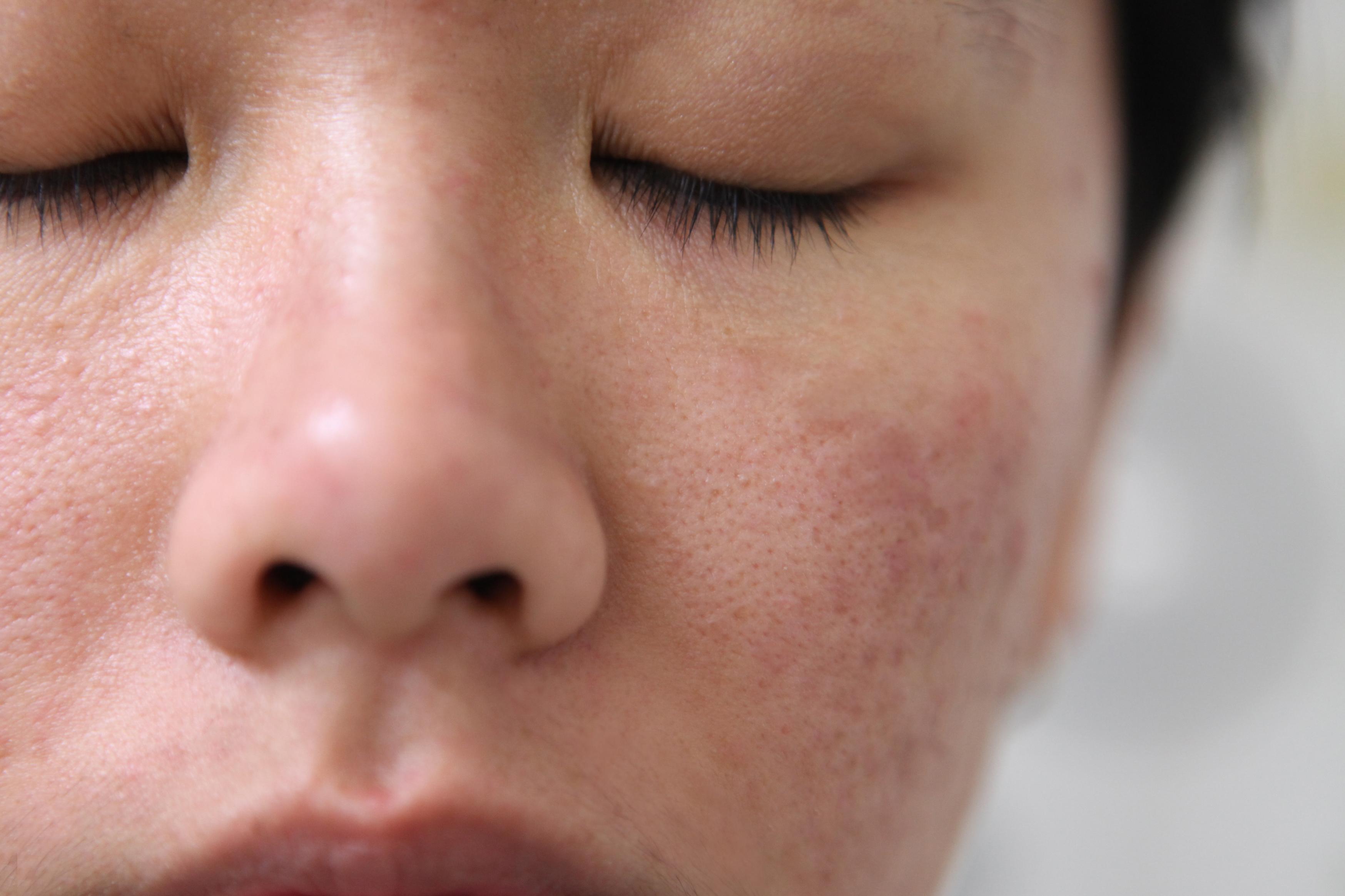 Homemade Skin Tightening Face Mask   LIVESTRONG.COM