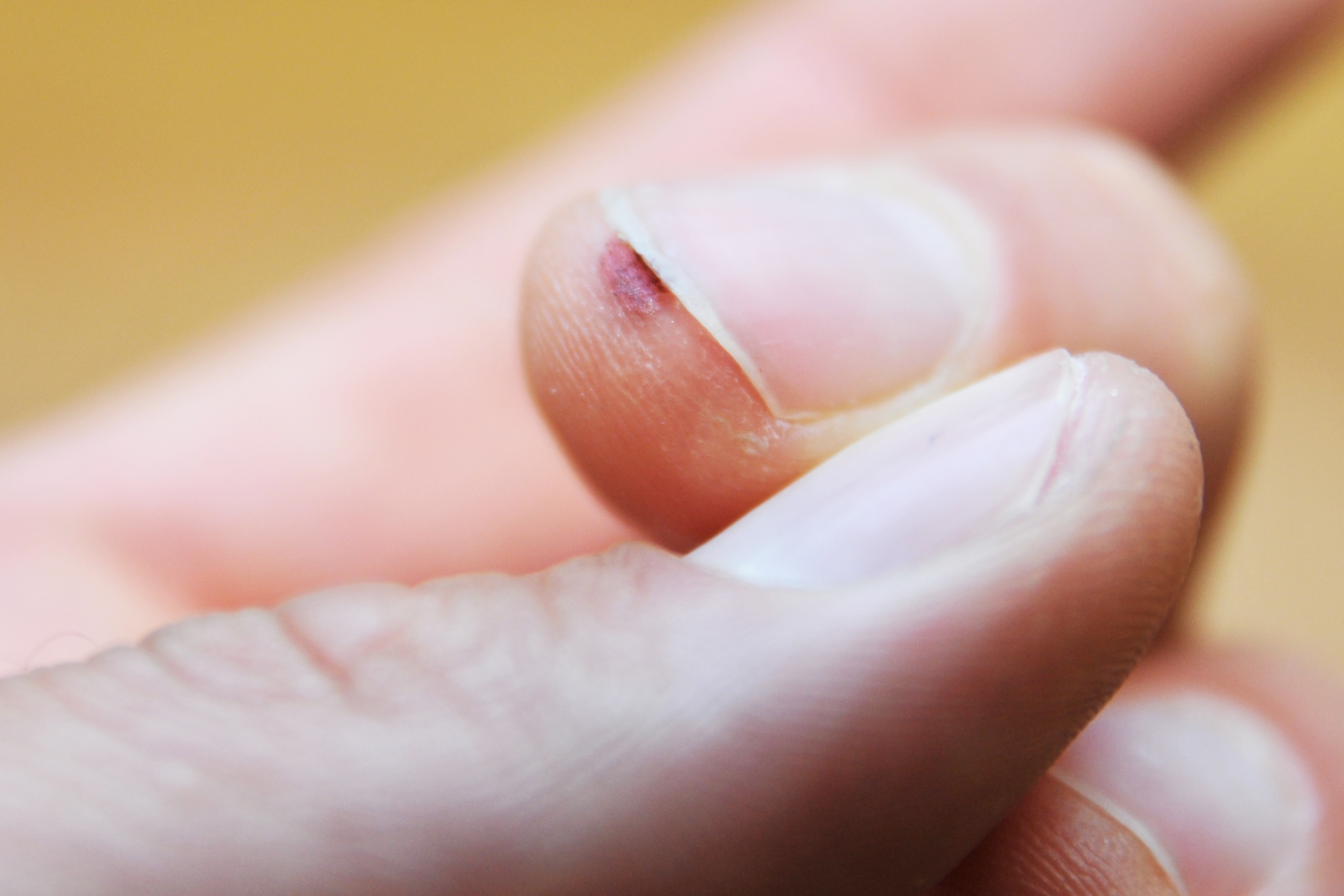 How to Get Rid of Common Warts Under the Nails | Healthfully