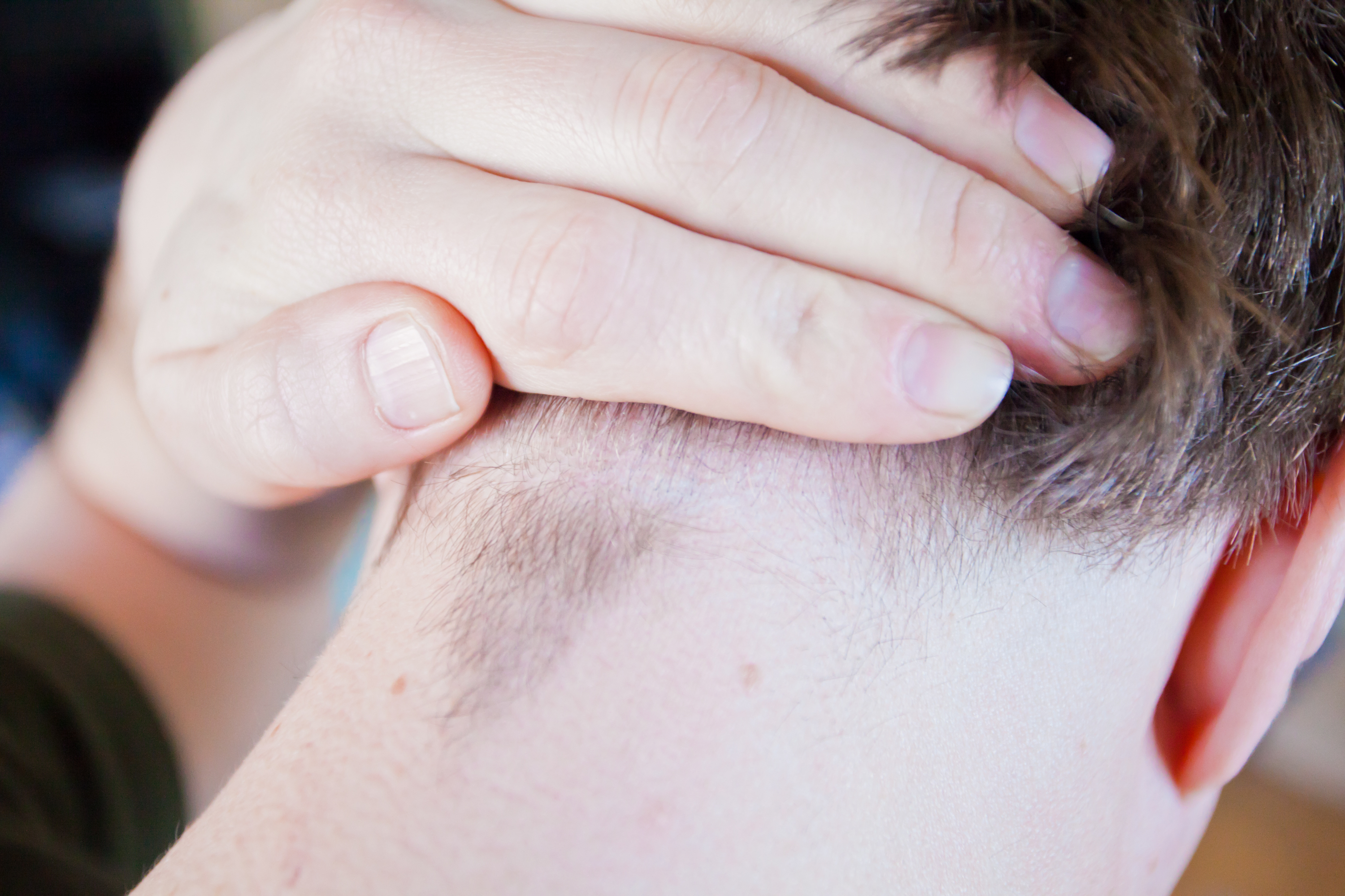 How To Treat Ingrown Hairs On The Scalp Livestrong