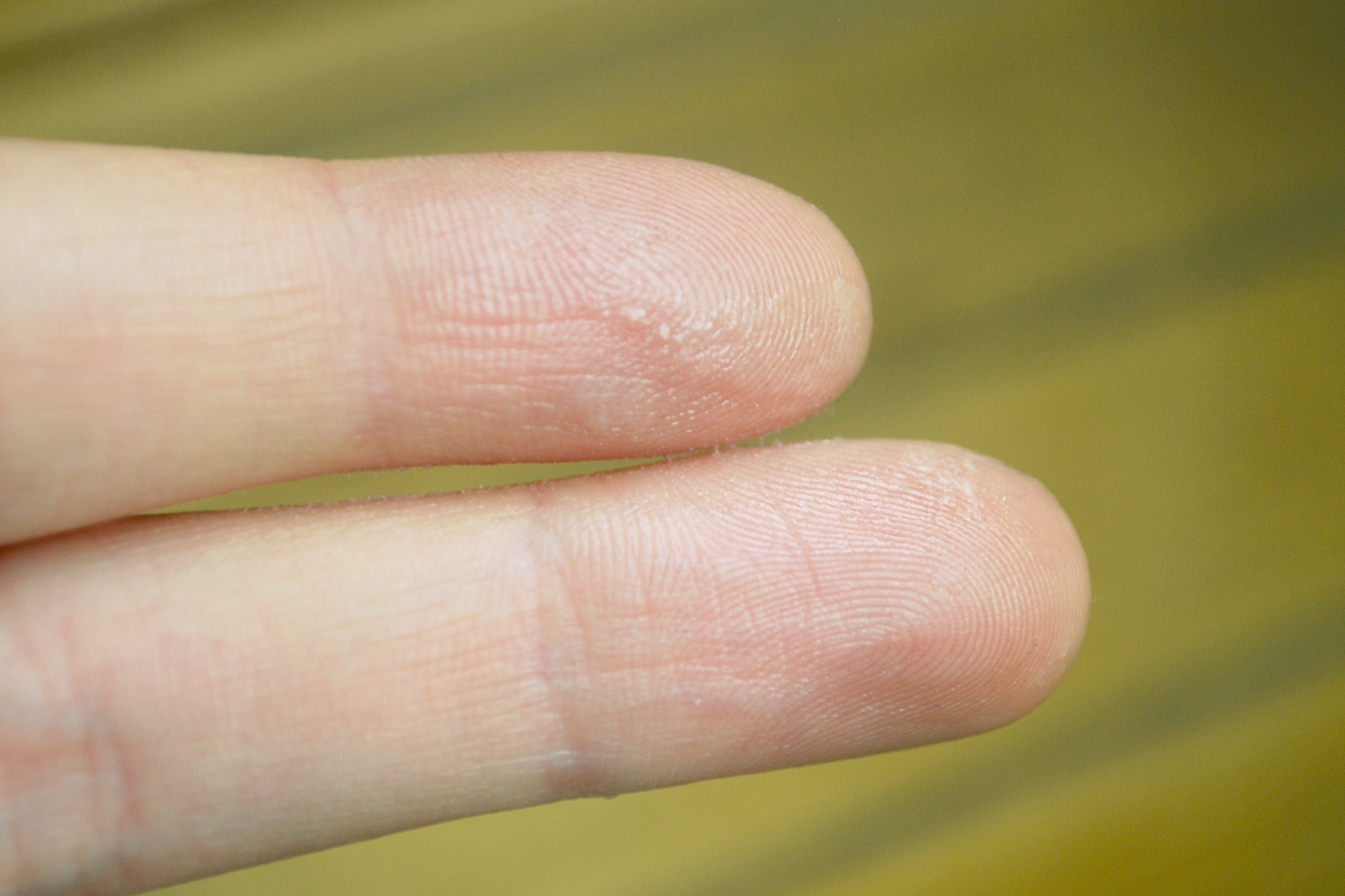 How to Get Nail Glue Off of Your Skin | LIVESTRONG.COM