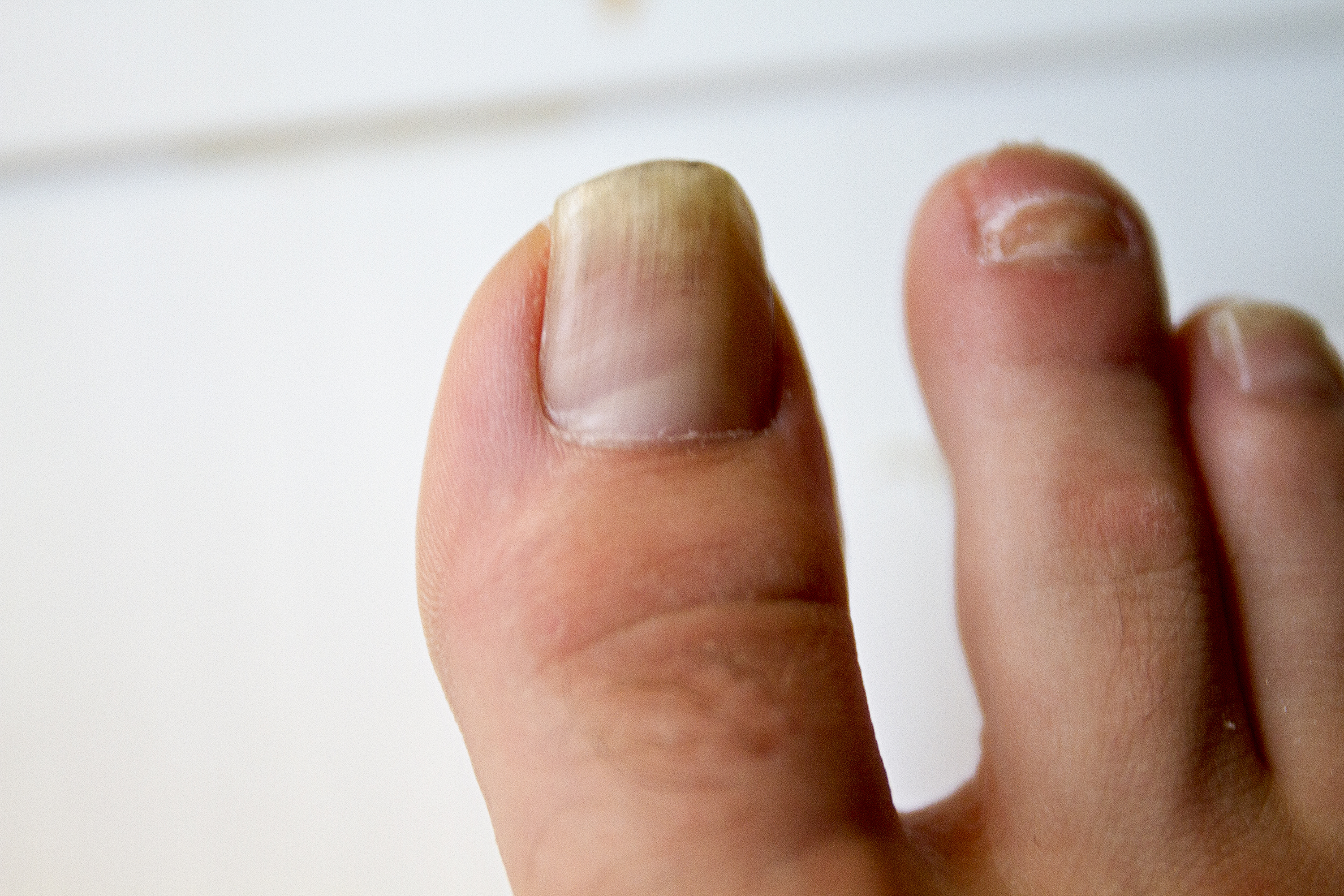 How to Apply Vicks to Toenail Fungus | LEAFtv