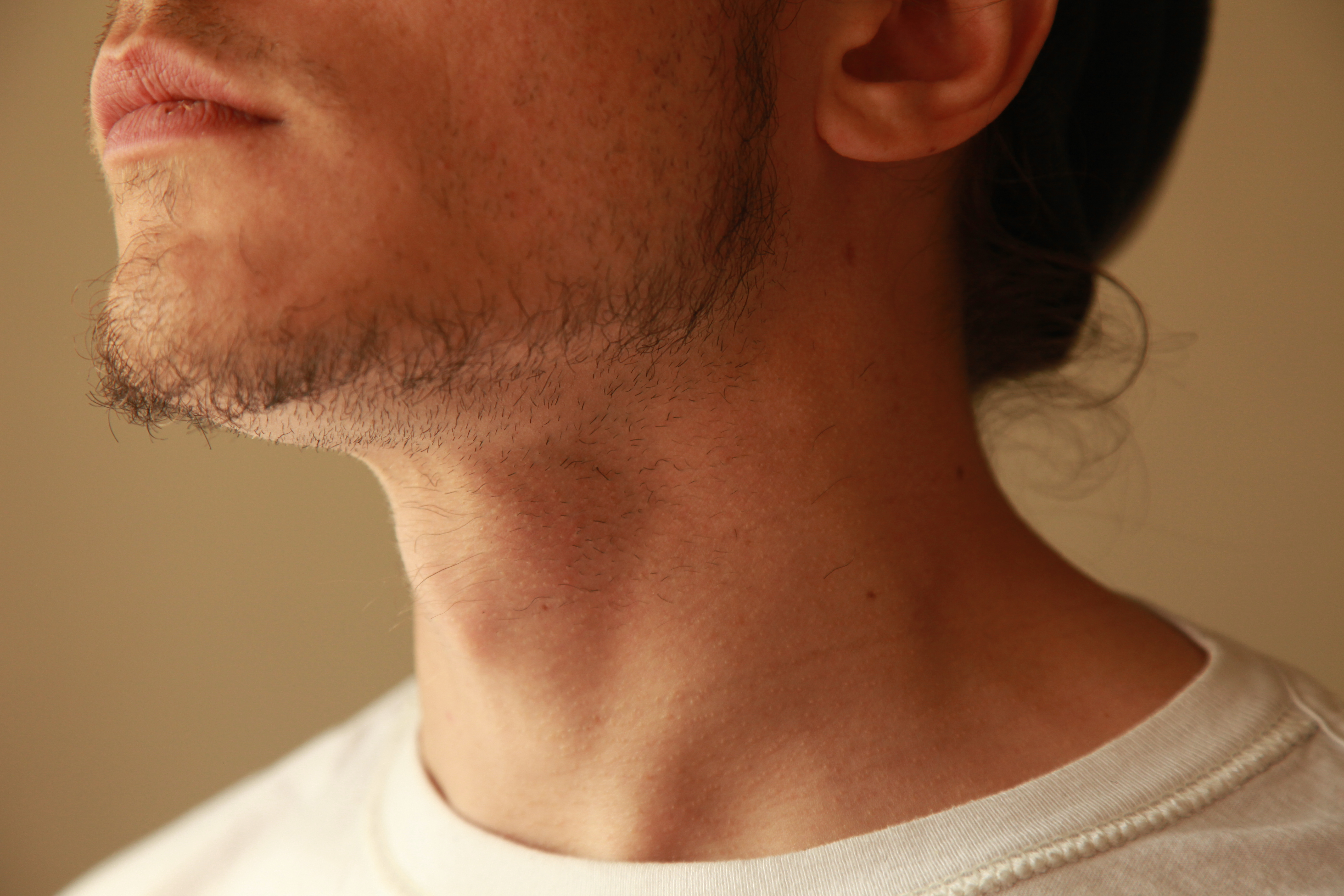 How To Get Rid Of Ingrown Hairs On The Neck Livestrong