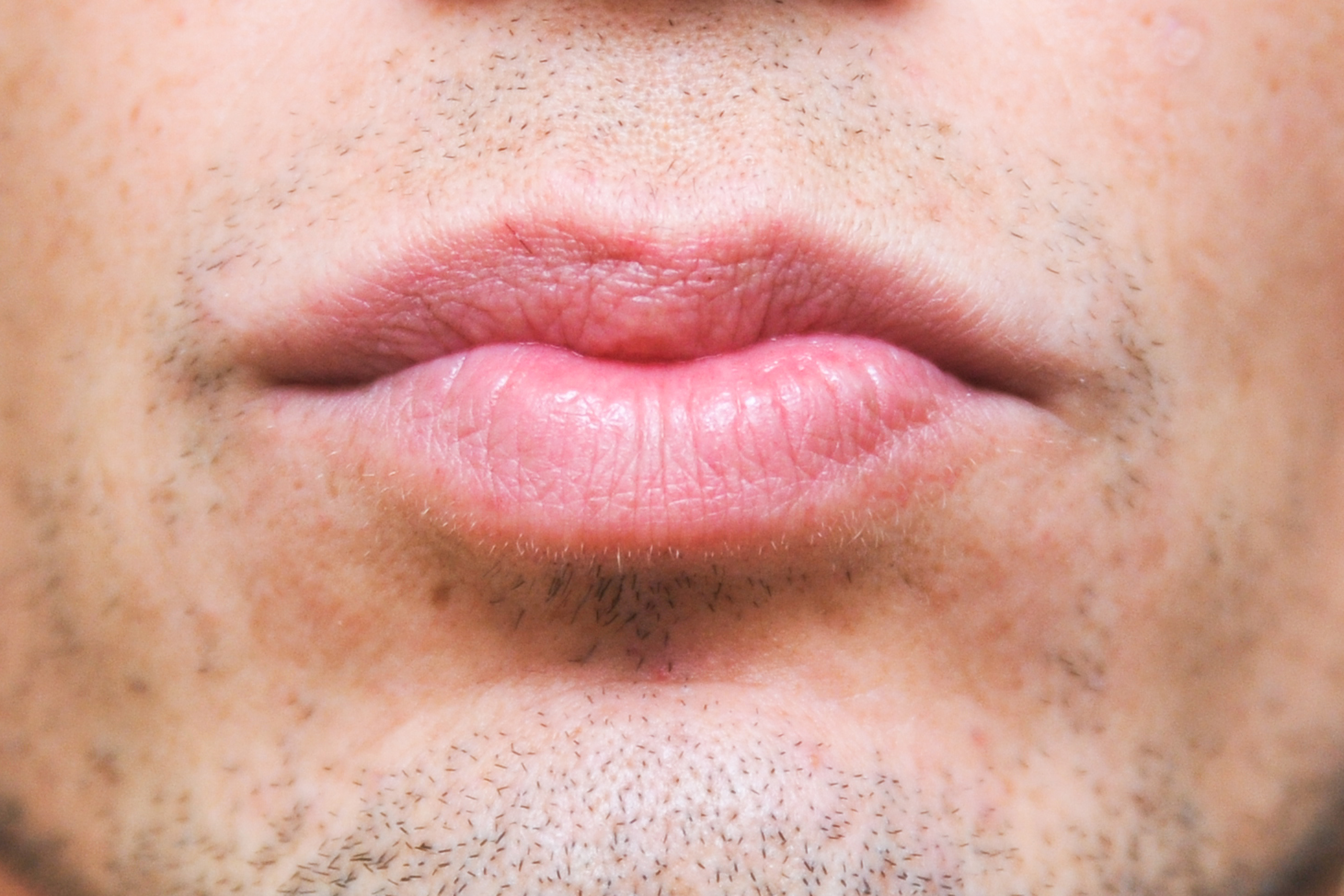 How to Remove Nicotine Stains From Lips | LIVESTRONG.COM