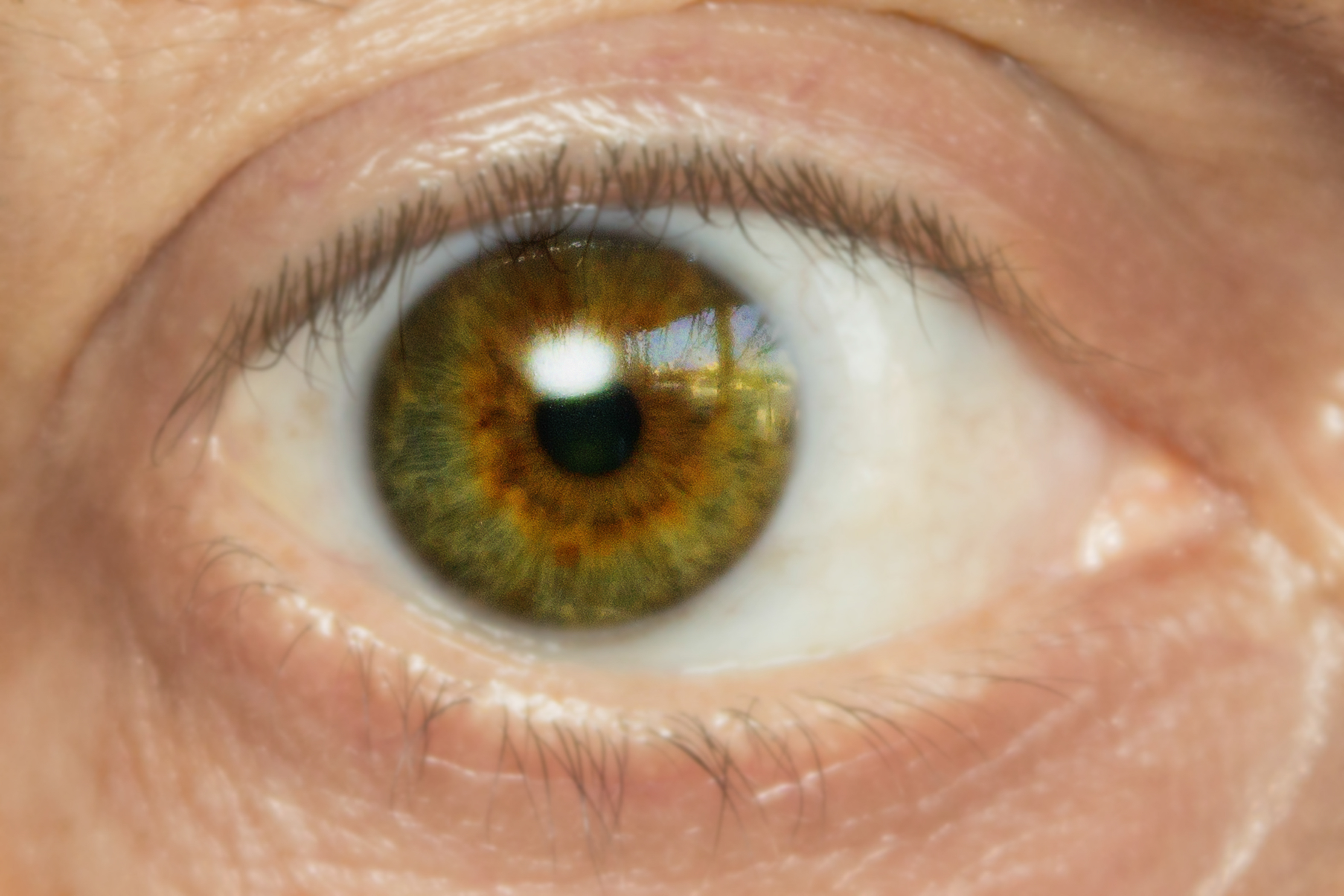 What Are The Treatments For Poison Oak In Eyes Healthfully