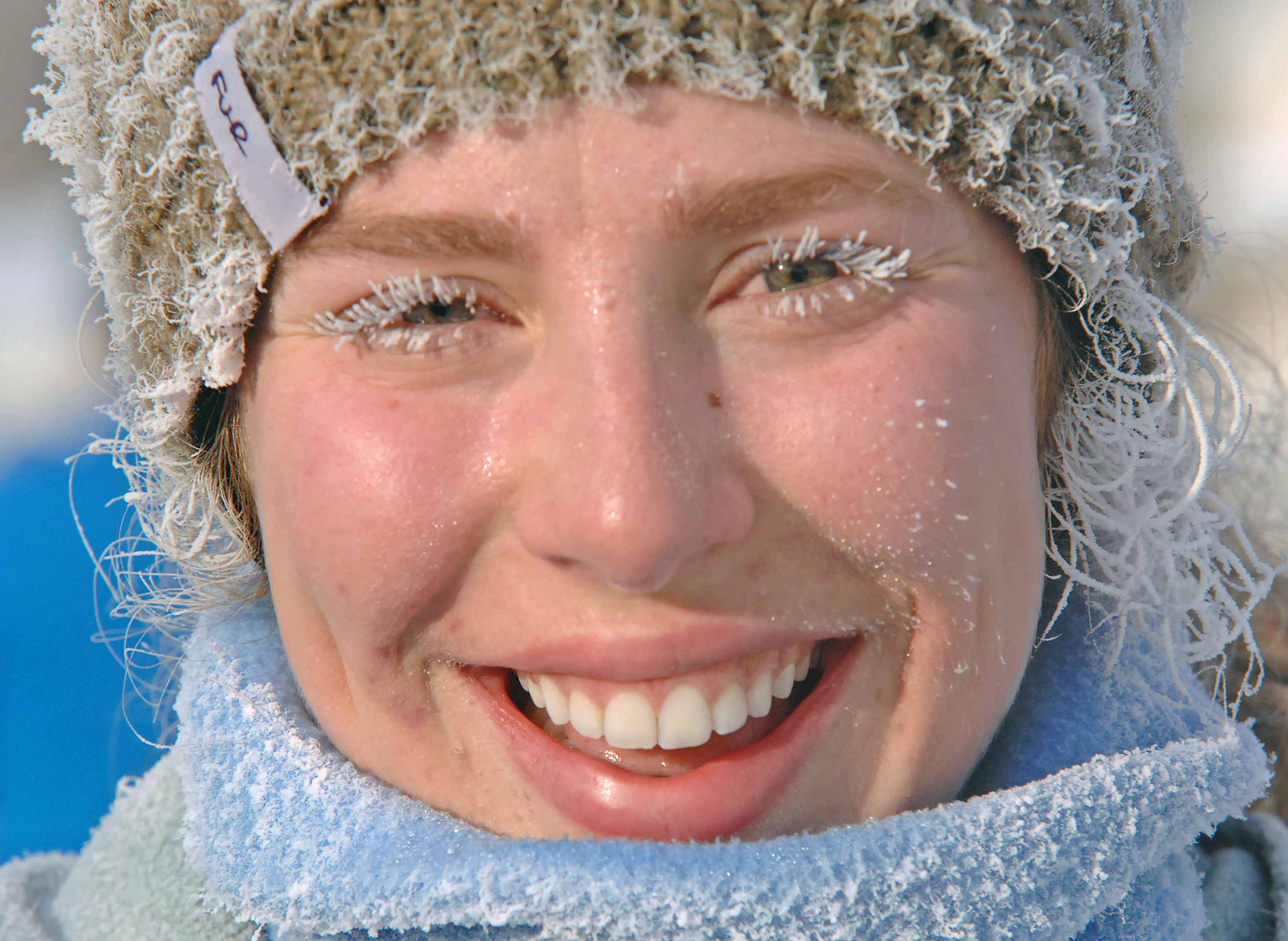 6 tips for protecting your skin in Colorado's cold, dry winters