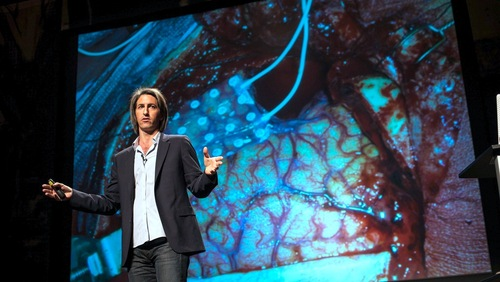 Moran Cerf: Hacking the brain