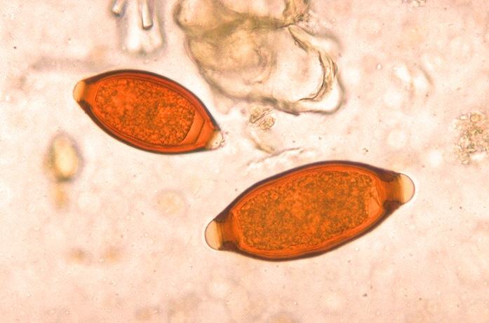 Caption: Parasitic worm eggs of species Trichuris trichiura and Trichuris vulpis