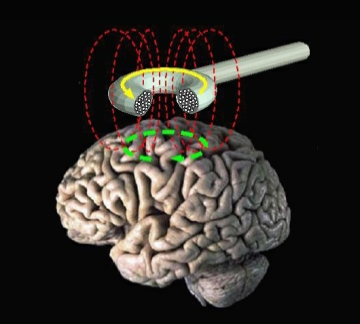 Caption: A schematic of transcranial magnetic stimulation., Credit: Credit: Eric Waserman/NIH