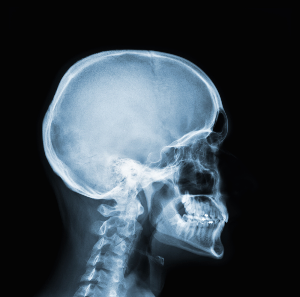 Caption: X-ray of a skull