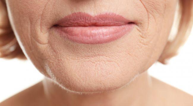 Arrugas debajo de la nariz