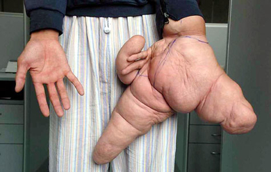 Gigantic-hand