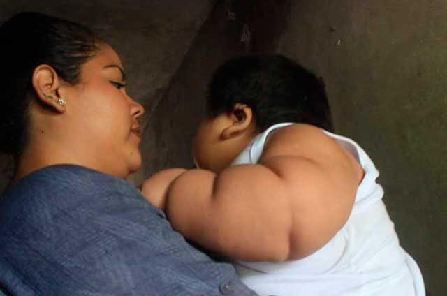 ¡Bebé-de-10-meses-pesa-30-kilos!