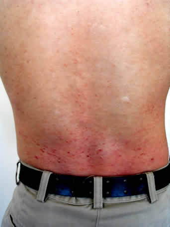 brett back before Tulsa Customer Clearly Shows Guttate Psoriasis Treatment