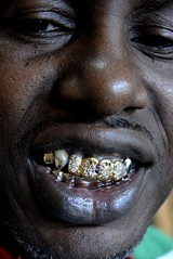 See Eddie's Gold Teeth on the Rap Map