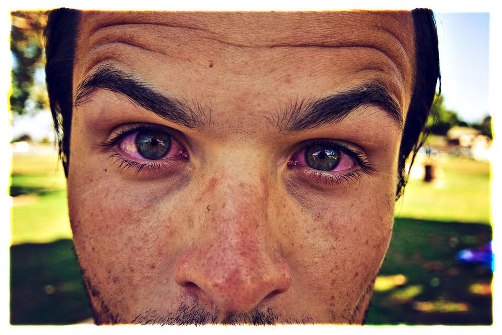 Почему у человека темные круги под глазами 160