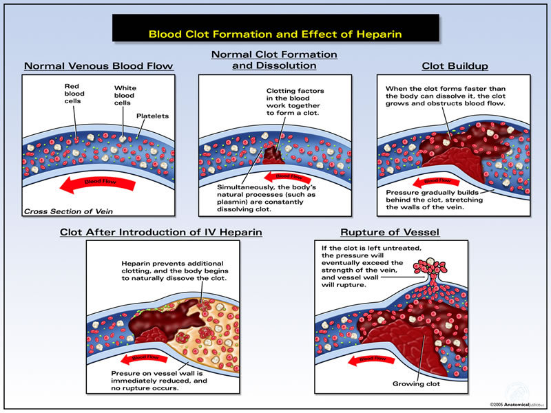 formation of blood clots The reactions that result in the formation of a blood clot are balanced by other reactions that stop the clotting process and dissolve clots after the blood vessel.