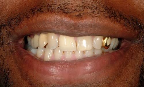 gold tooth crown Quotes