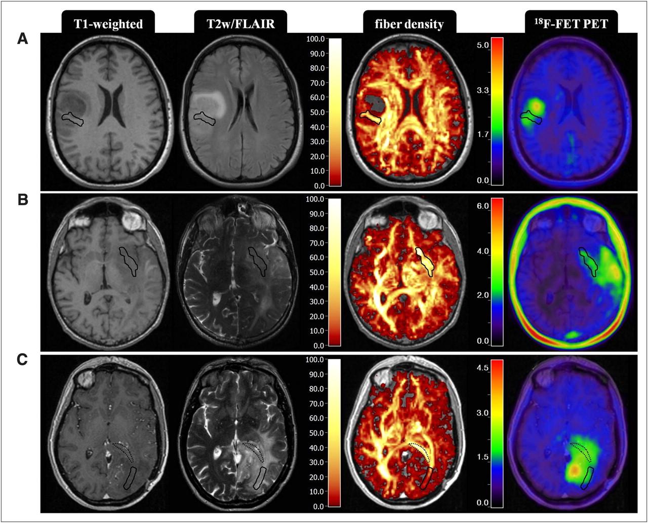 Brain Tumor PET