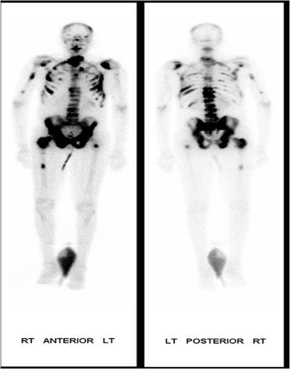 Prostate Cancer Bone Scan