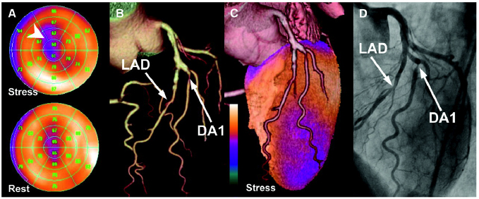 SPECTCT-Fusion Imaging of Myocardial Perfusion