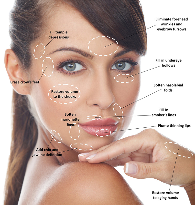 Juvederm Treatment Areas