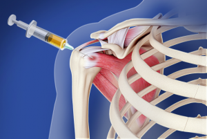 Orthopedic PRP Shoulder Injection
