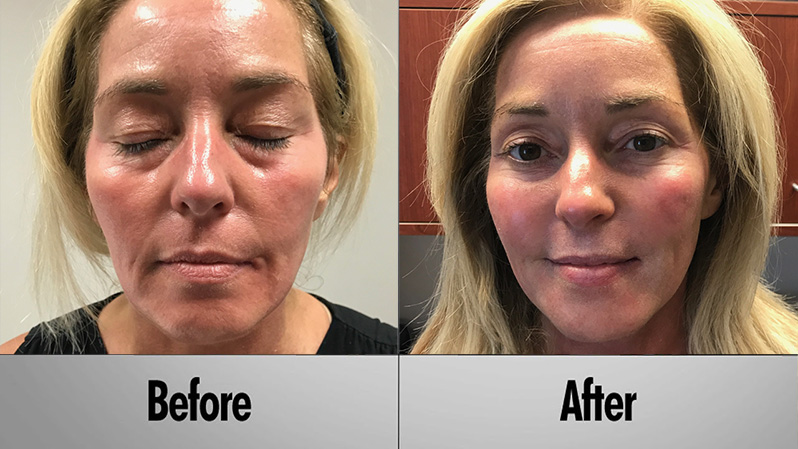 Before and after Vampire Facelift