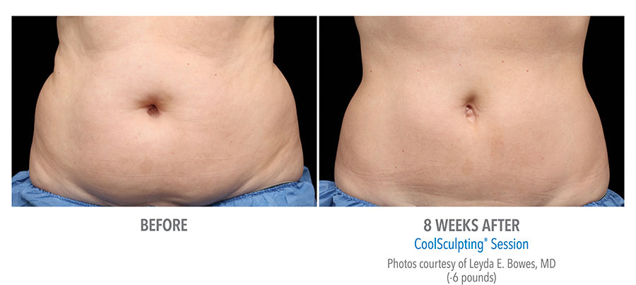 Coolsculpting Female Before & After