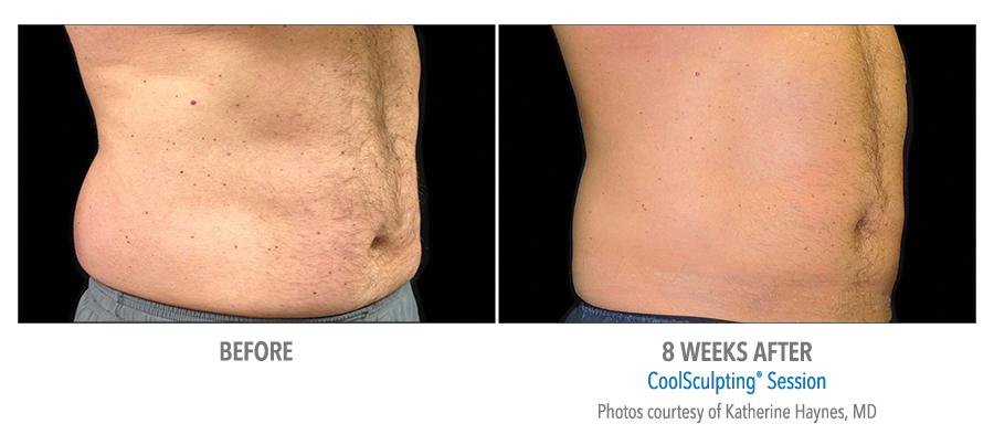 Coolsculpting Male Before & After