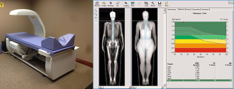 Image result for dexa scan