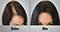 hair_restoration-60