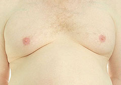 gynecomastia male breasts
