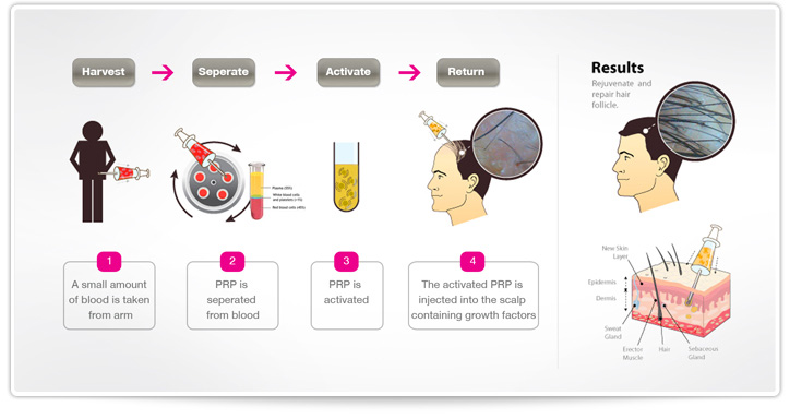 PRP Hair Restoration Procedure