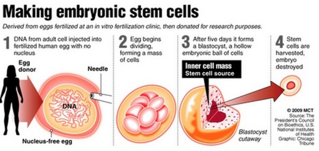 the miracle offered by stem cell research But no miracle is a match for when he advocated for embryonic-stem-cell research the nurses in his department offered him an old laser they were going to.