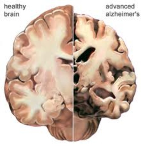 alzheimer s and effects informative piece writing explaini Cognitive psychology and cognitive neuroscience/memory and language alzheimer's disease cognitive psychology and cognitive neuroscience.