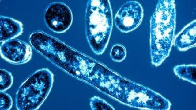 Legionnaire's disease strikes 182, kills 29