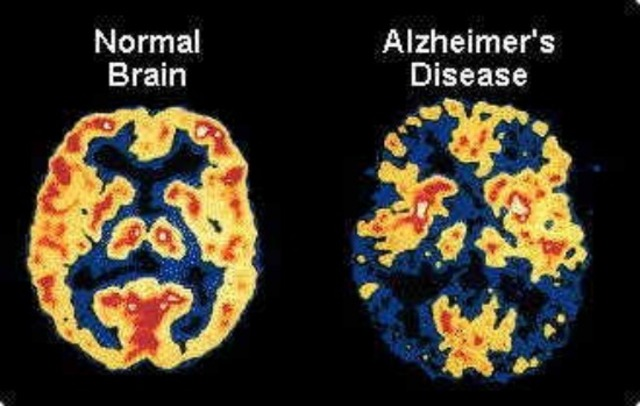 Onset of Alzheimer's