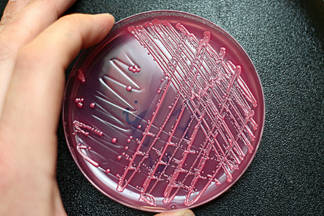 Robert Koch Begins discovery of the Connection between Bacteria and Disease