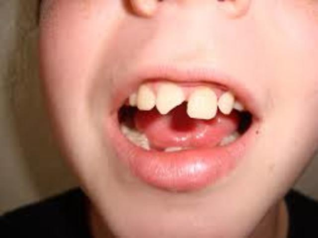 Tooth problem