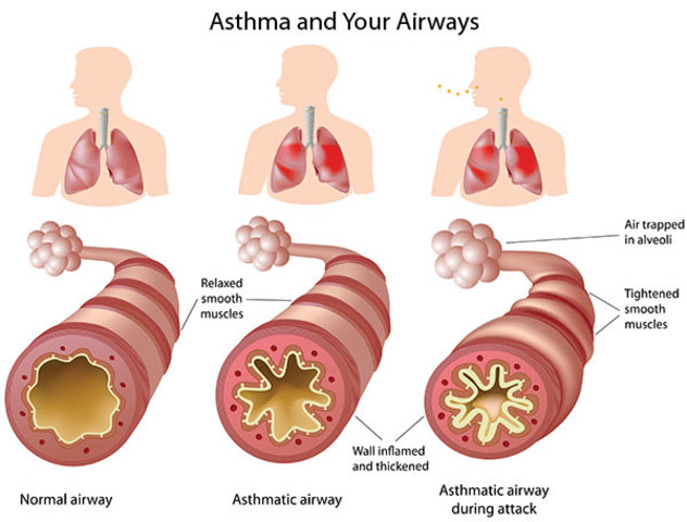 Discovery of asthma