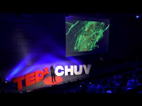Bringing brain cells back home | Jocelyne Bloch | TEDxCHUV thumbnail