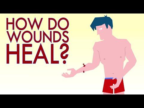 How a wound heals itself - Sarthak Sinha thumbnail