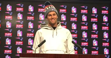 Tom Brady: 'I feel really good this week. I am very happy about that'
