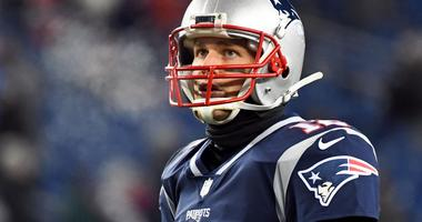 What to look for when it comes to Tom Brady's hand injury