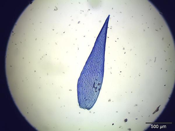 Sphagnum (Sphagnum Angustifolium) http://www.sagebud.com/sphagnum-sphagnum-angustifolium/