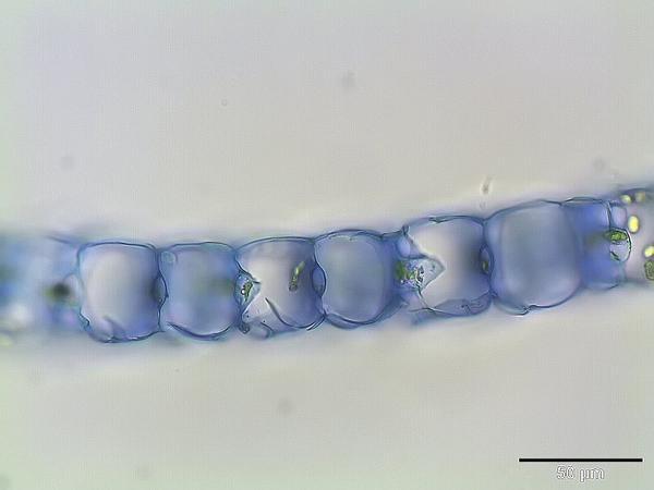 Magellan's Sphagnum (Sphagnum Magellanicum) http://www.sagebud.com/magellans-sphagnum-sphagnum-magellanicum