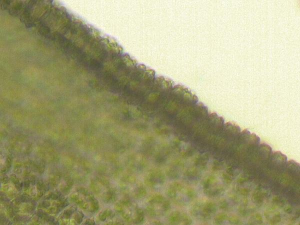 Tortula Moss (Tortula Ruralis) http://www.sagebud.com/tortula-moss-tortula-ruralis/
