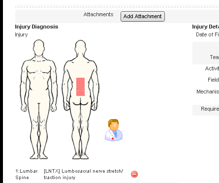 Once you successfully import the data, the injury codes will appear in the body diagram