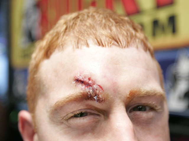 Cord McCoy sports a fresh set of stitches from a wound inflicted by a bull named Dirty Harry at the Professional Bull Riders Versus Invitational on Jan. 6, 2008.