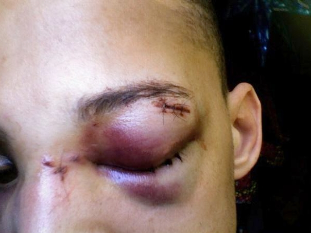 Facebook user Damian Furtch said he had to get four stitches after being attacked on Sunday.